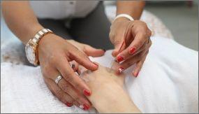 Acupuncture in Chiropractor Santa Ana