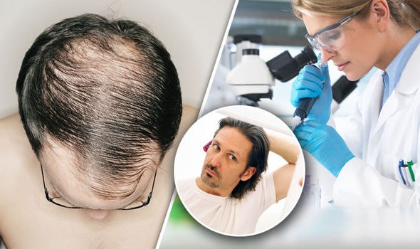 Men's Hair Replacement Los Angeles
